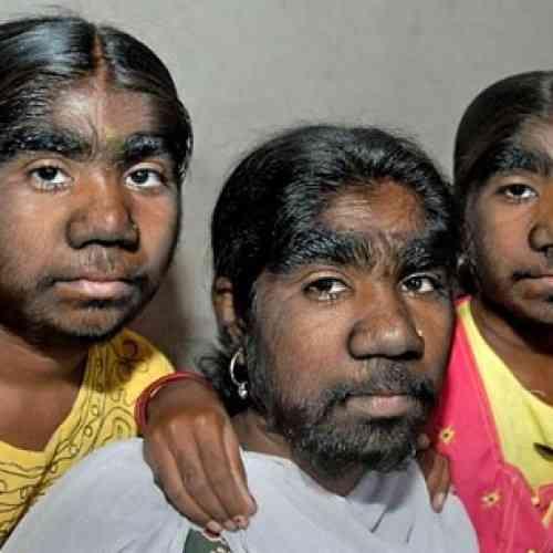 Tres hermanas sufren el síndrome del hombre lobo
