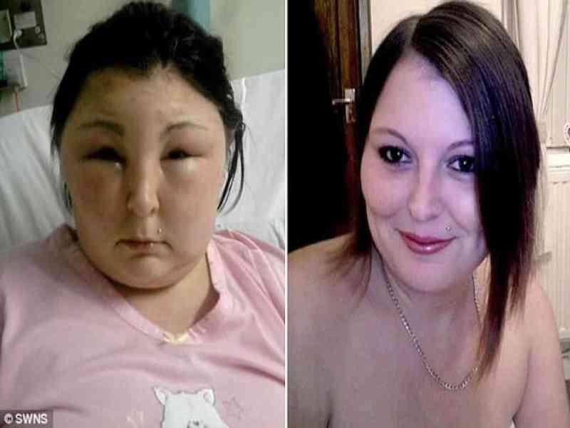 El rostro de una joven de 25 años sufrió hinchazón por tinte en cabello