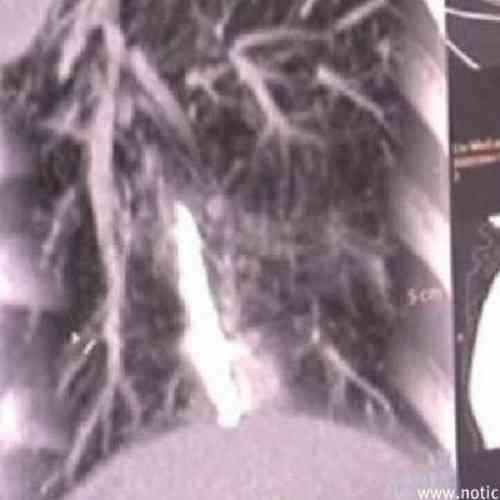 Lleva 44 años con un termómetro incrustado en un pulmón