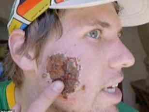 Un parásito se comió gran parte de la cara a un joven