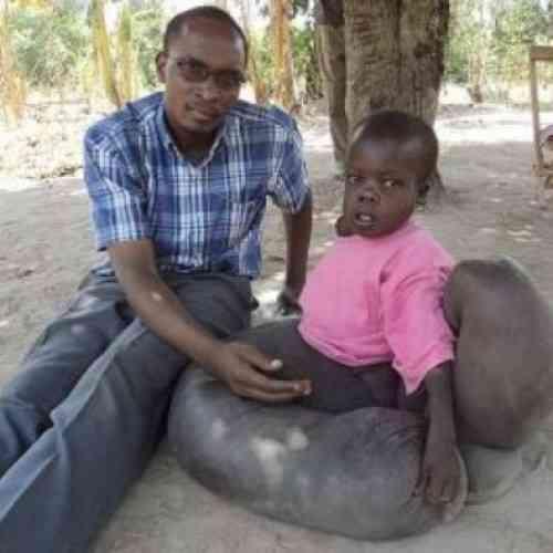 Vincent Oketch, el niño africano con patas de elefante