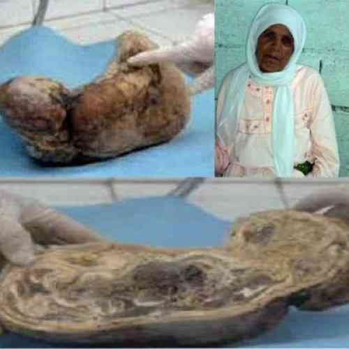 """Mujer dio a luz a un """"bebé de piedra"""" luego de estar 46 años embarazada"""