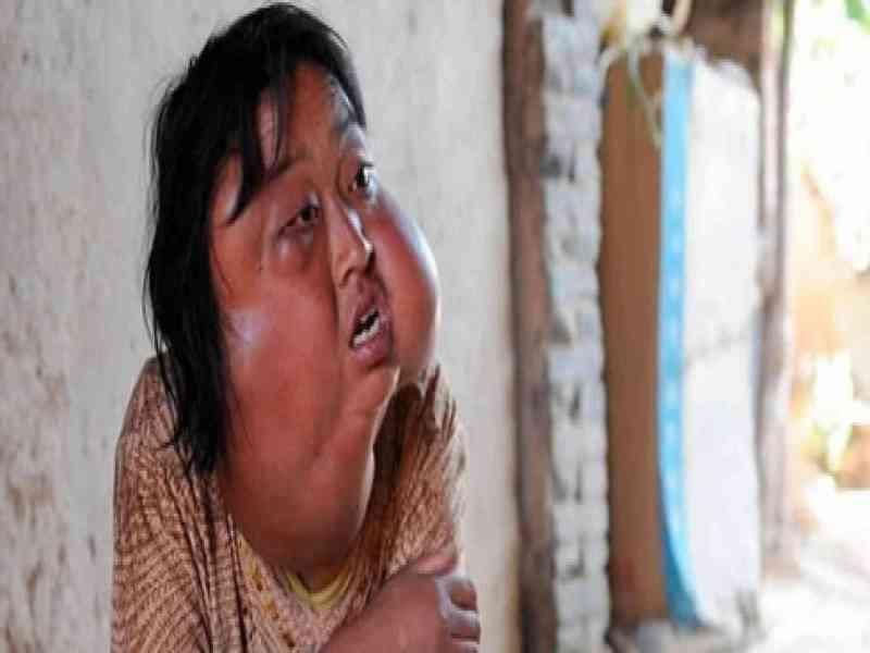 Mujer china desfigurada por los 7 tumores de su cara