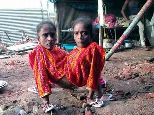 La historia de las siamesas indias casadas con un hombre hace 22 años