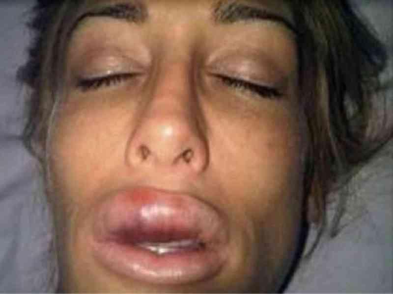 Quedó deformada tras aplicarse un producto en los labios