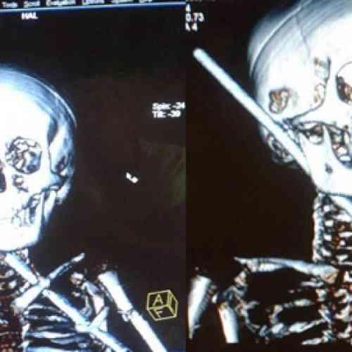 Un niño de 10 años sobrevive después de que una barra de acero le atravesara el cuerpo